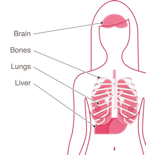 metastasized breast cancer of the liver picture 4