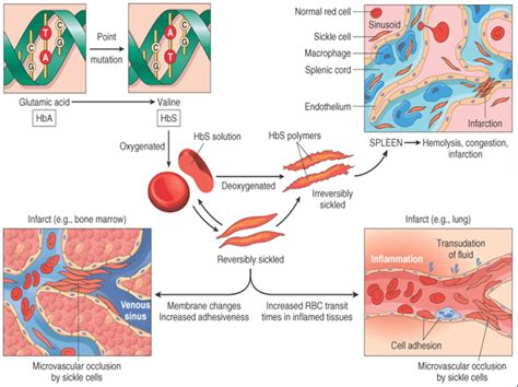 what causes decreased liver function picture 9