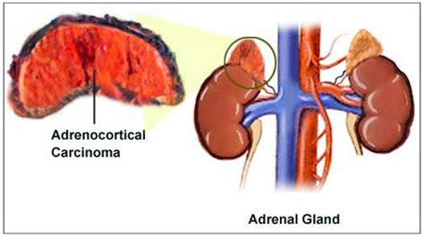 affects of aging on the adrenal cortex picture 5
