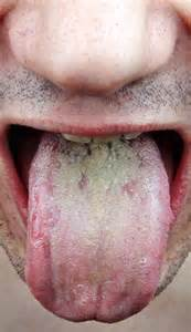 repeated yeast infections on tongue picture 10
