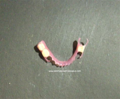 single tooth stay plate picture 5