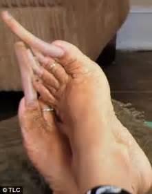 woman long toenail picture 7