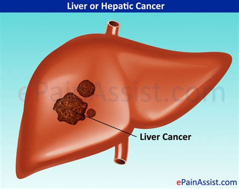pain with liver cancer picture 7