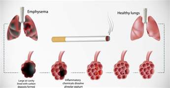 7 day lung cleanse by herbal care direct picture 10