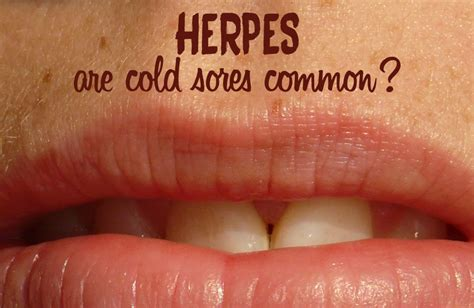 cold sores herpes picture 19
