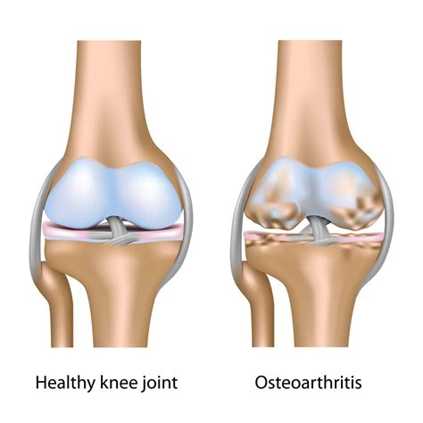 overweight effects on knee joints picture 1