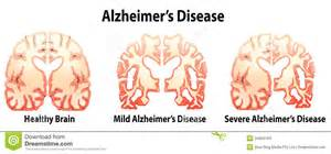 alzheimer's patient that sleeps all the time picture 6