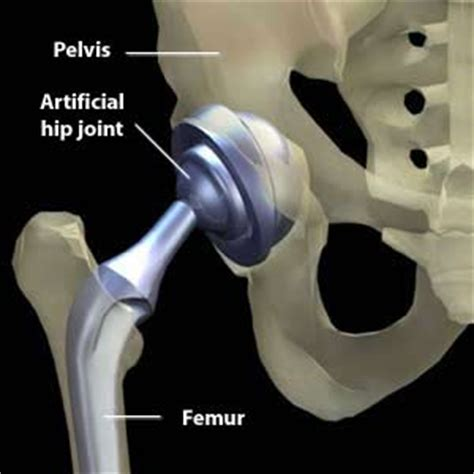 image of hip replacement joint picture 15