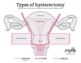 boils after histerectomy picture 9