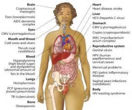 liver sujan desease explain in urdu picture 10