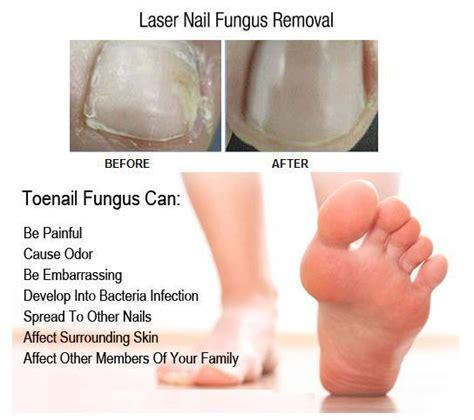 laser treatment for fungal toenails picture 7