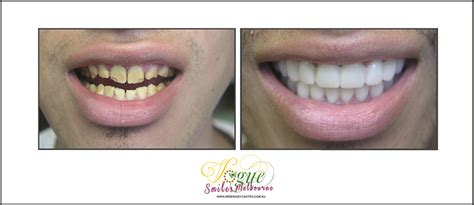 cheap snap on veneers for h picture 10