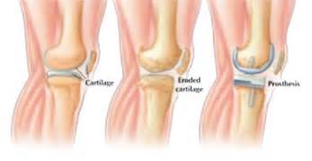 female knee joint replacement picture 15