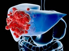 cancer of the liver picture 14