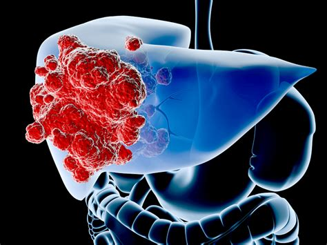 how common is liver cancer picture 11