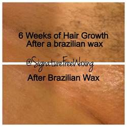 waxing hair not growing picture 6
