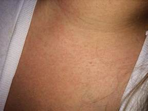 skin reaction to sunscreen in infants picture 10