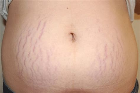 kim stretch marks picture 1