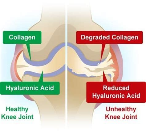 knee joint pain power drinks picture 2