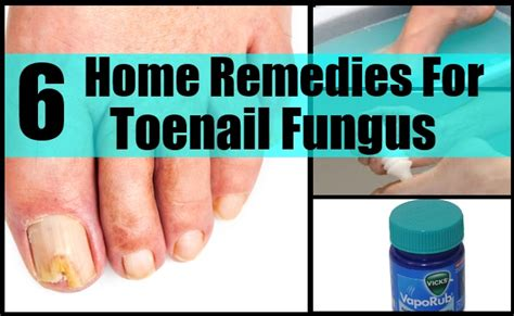nail fungus remedies picture 14