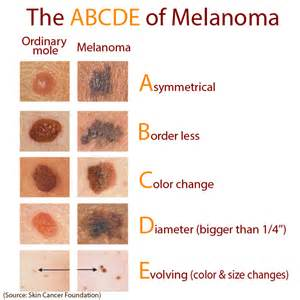 abcs of skin cancer picture 13