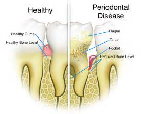 probiotics wisdom tooth extraction picture 10
