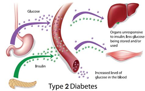 What causes high blood cholesterol levels picture 9