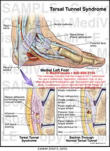 vitamins for tarsal tunnel syndrome picture 11