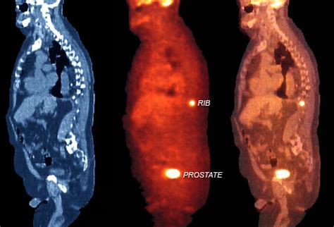 Advanced prostate cancer with bone metastasis life expectancy picture 13