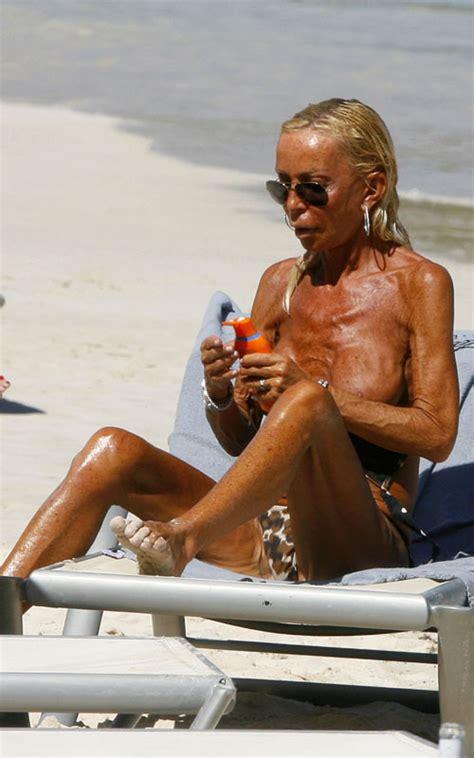 huntington beach breast augmentation picture 9