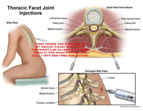 facet joint injections picture 1