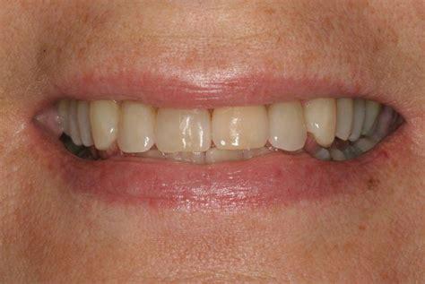antibiotic discoloring teeth picture 7