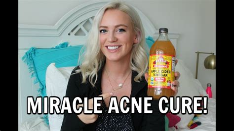 miracle cures for acne picture 5
