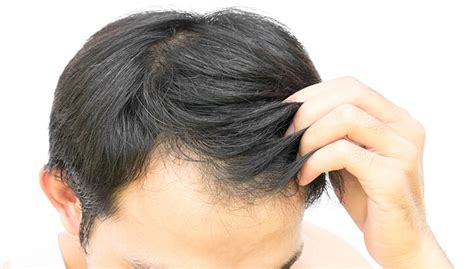 correcting hair problems picture 7