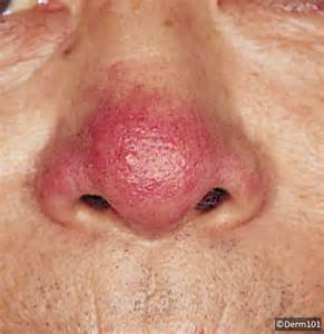rosacea on nose picture 1