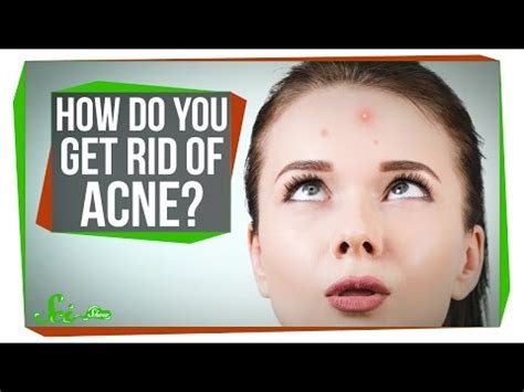 acne exoris picture 21