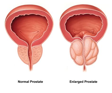 gamot sa enlargement of prostate picture 3