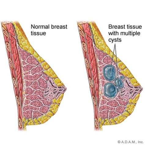 cystic fibrosis in the breast picture 4