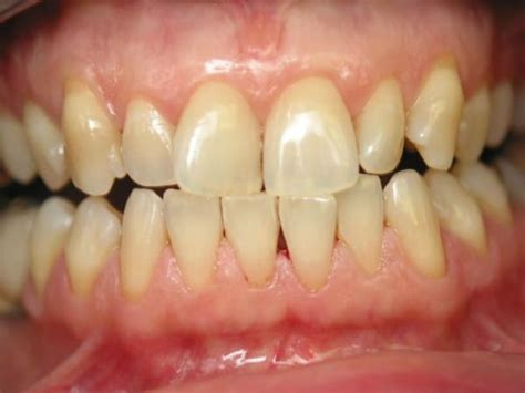 bad teeth picture 7
