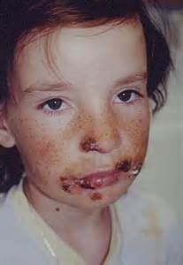 pediatric oral herpes simplex picture 11