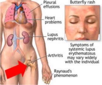liver damage from prednisone picture 2