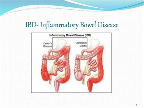 inflammatory bowel disease picture 1