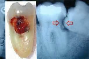 cavities in wisdom teeth picture 15