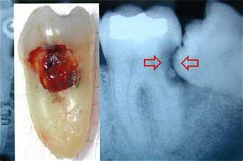 cavities in wisdom teeth picture 14