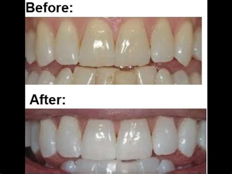 whitening strips to whiten lips picture 19