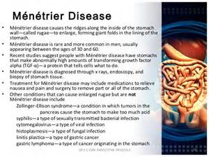 causes of weight loss picture 13