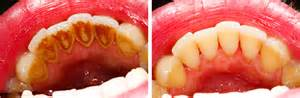can root c teeth cause bad breath picture 19