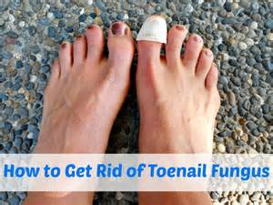 how to get rid of toenail fungus picture 2