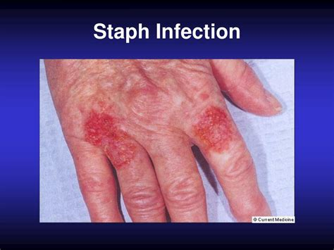 staph skin infections picture 17