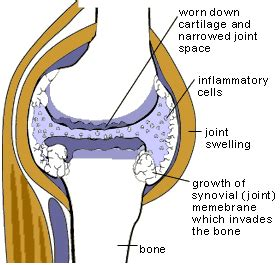 muscle bone and joint center picture 5